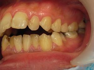 上顎前突と開口と下顎前歯部叢生による矯正治療