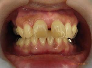 上顎前突と正中離開による矯正治療